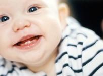 Trẻ mọc răng có các dấu hiệu gì và chăm sóc thế nào?